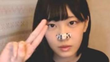 ねこてんは鼻テープなしの顔もかわいい!素顔を徹底調査!